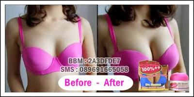 Hasil Before after cream payudara dr susan