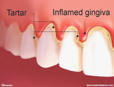 gingivitis-radang-gusi