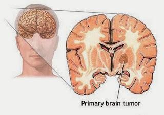 pengobatan herbal tumor otak