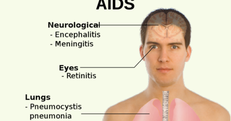 early stage symptoms of hiv aids - hiv aids cure, Skeleton