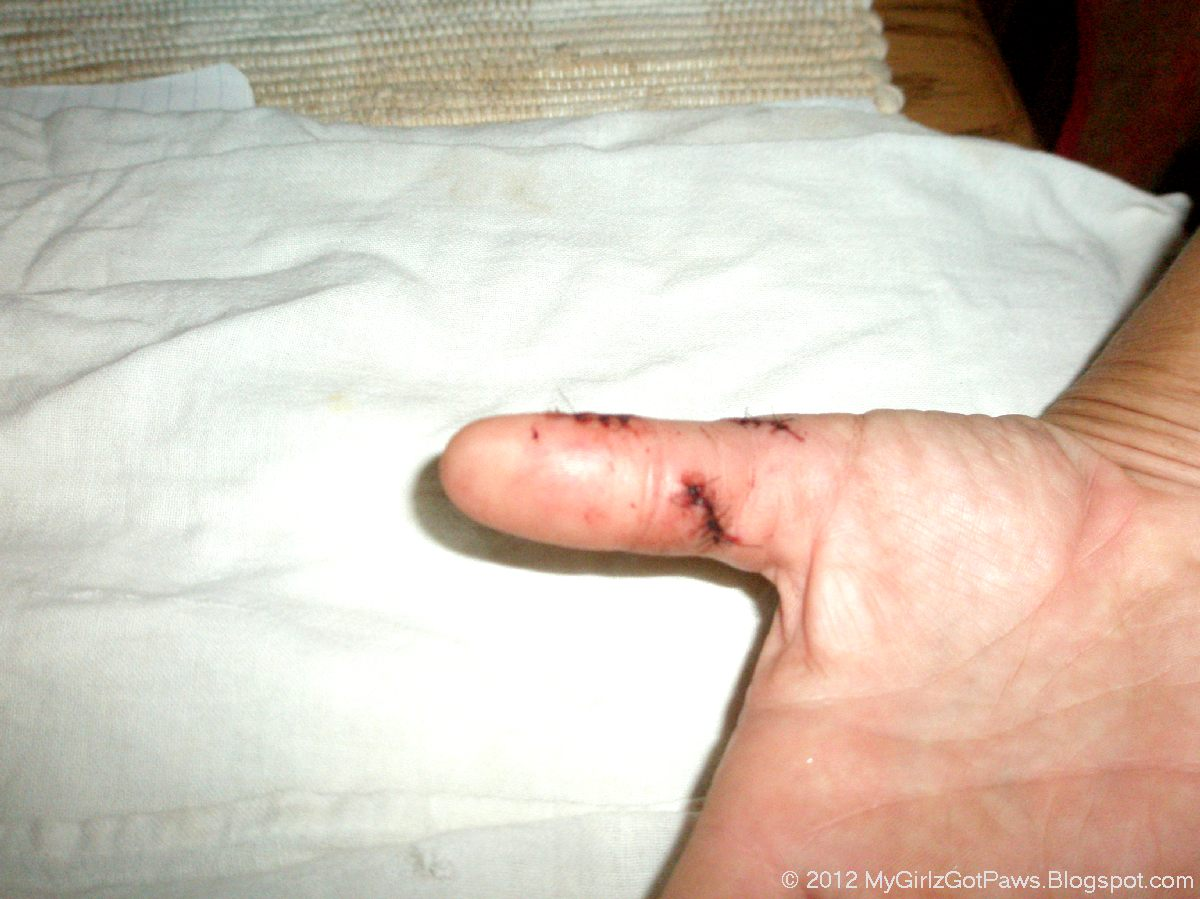 Dog Bites On Hand