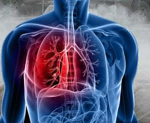 Silicosis Asbestosis and Mesothelioma