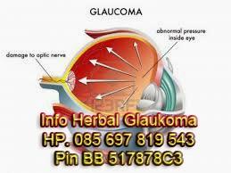 Cara Mengobati Glaukoma Tanpa Operasi