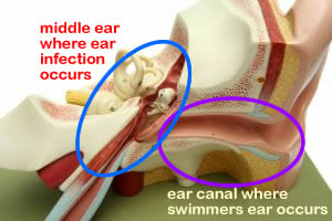 Summer's Here and So is Swimmer's Ear
