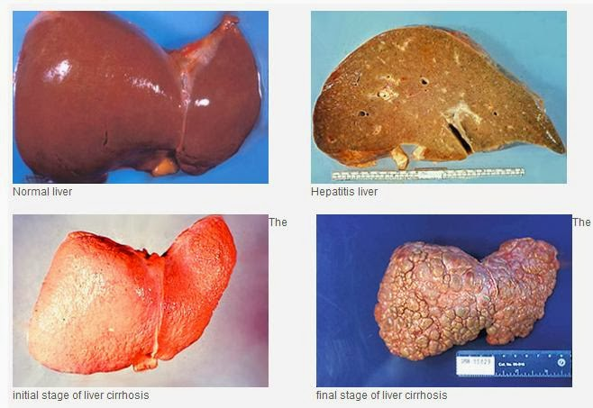 healing liver cirrhosis what could happen if you don t stop
