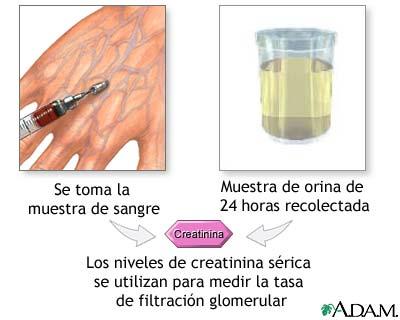 valores normales de acido urico en el cuerpo humano se puede comer jamon con el acido urico alto acido urico y urea en sangre