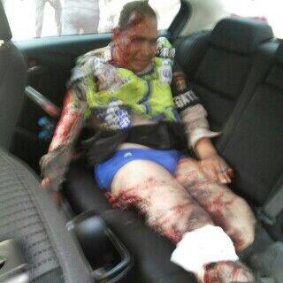 Foto Korban Ledakan Bom Sarinah, Thamrin