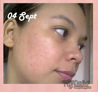 Penggunaan Original Pure Vitamin C20 Serum