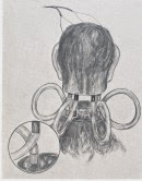 Monkey Head Transplant