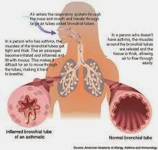 Obat Paling Cepat Mengobati Penyakit Asma