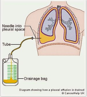 Nursing Interventions for Ineffective Breathing Pattern - Pleural Effusion