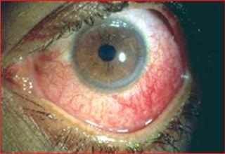 Achat Boswellia - Asthme - usure et érosion des articulations - medi