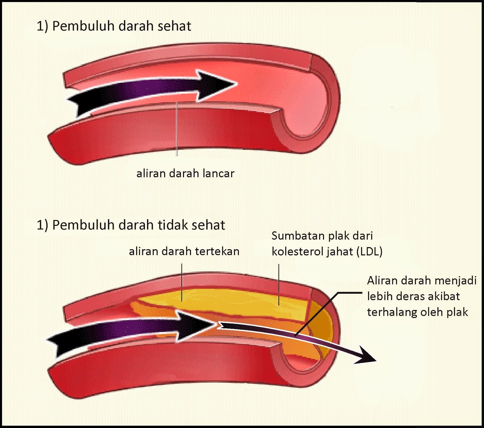 Cara Mengobati Penyumbatan Pembuluh Darah