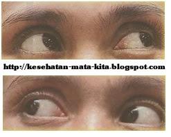 Cara senam mata yang benar