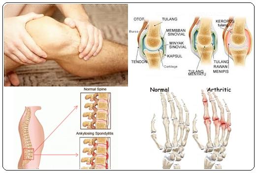 Cara Cepat Mengatasi Penyakit Tulang Ankilosis