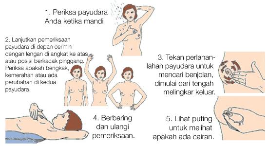 LAPORAN PENDAHULUAN CA MAMMAE (CARSINOMA MAMMAE)/ KANKER PAYUDARA