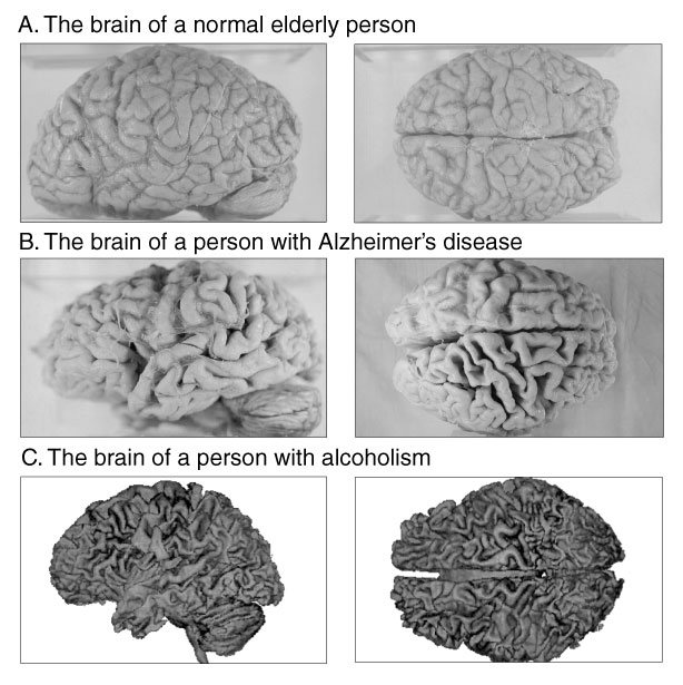 the damages caused by alzheimers on human memory There are many theories on what causes alzheimer's disease what are some of the most popular ones  the implication being that the amyloid is what's causing the memory loss there are other theories  and it has now caused damage to the floor and substructure work is needed to assess what has gone wrong and how it might be repaired.