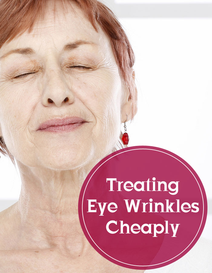 Treating Eye Wrinkles Cheaply