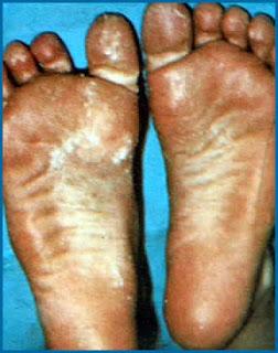 Acrodinia: cauze, evolutia bolii, tratament