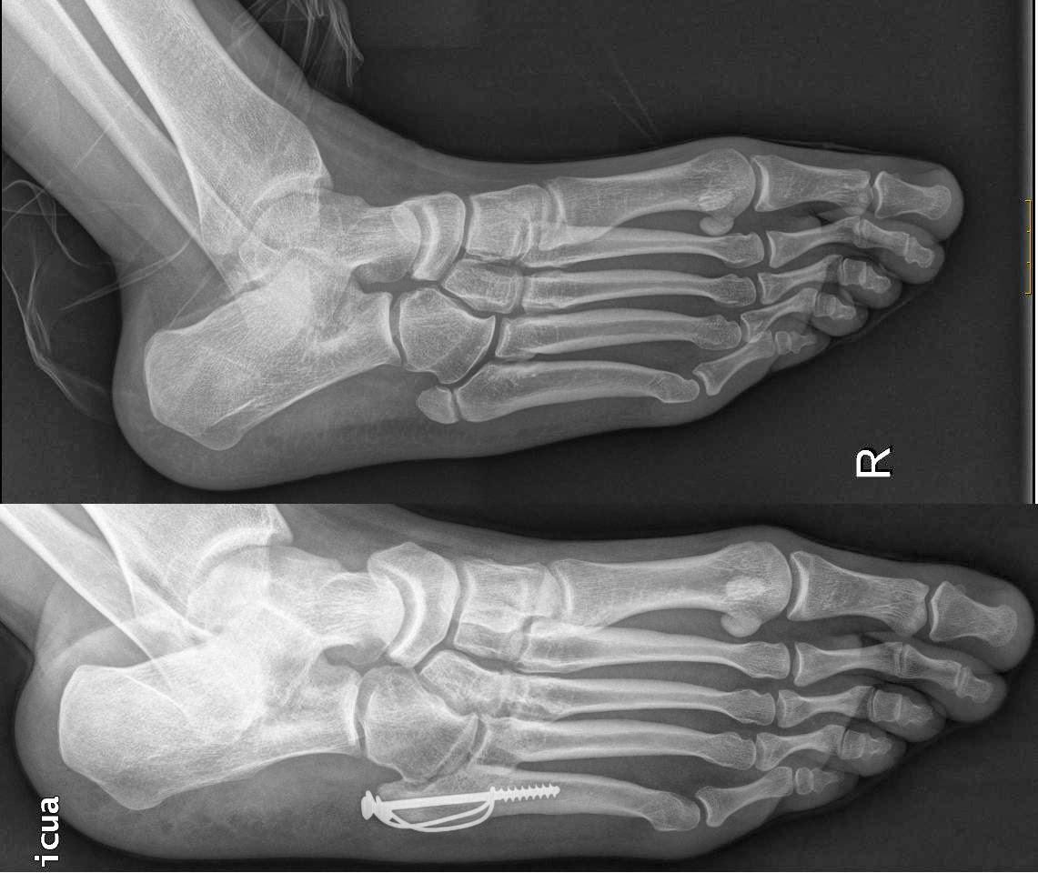 Fan ticos del pie fractura quinto metatarsiano for Cuarto y quinto metatarsiano