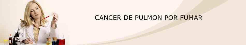 """""""Cáncer De Pulmón Por Fumar"""""""