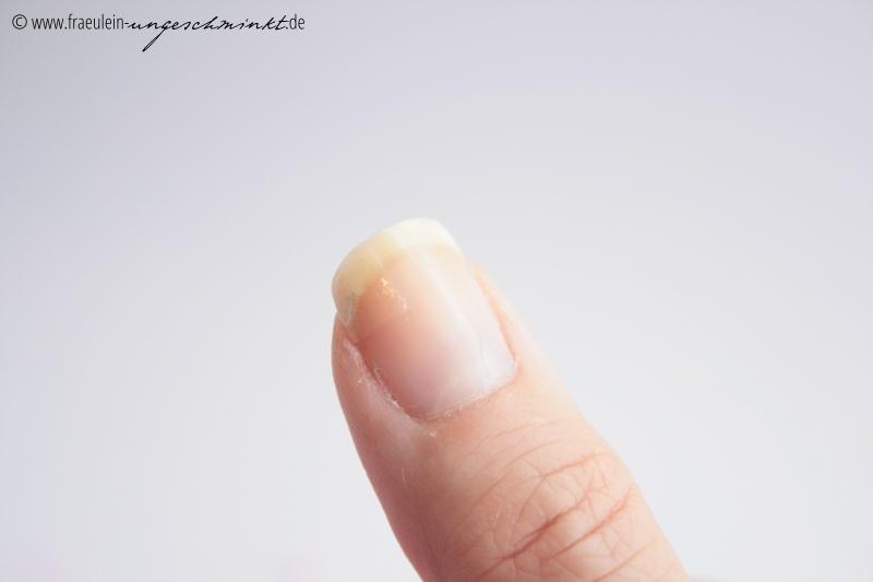Welche Medikamente für gribok als die Nägel besser ist