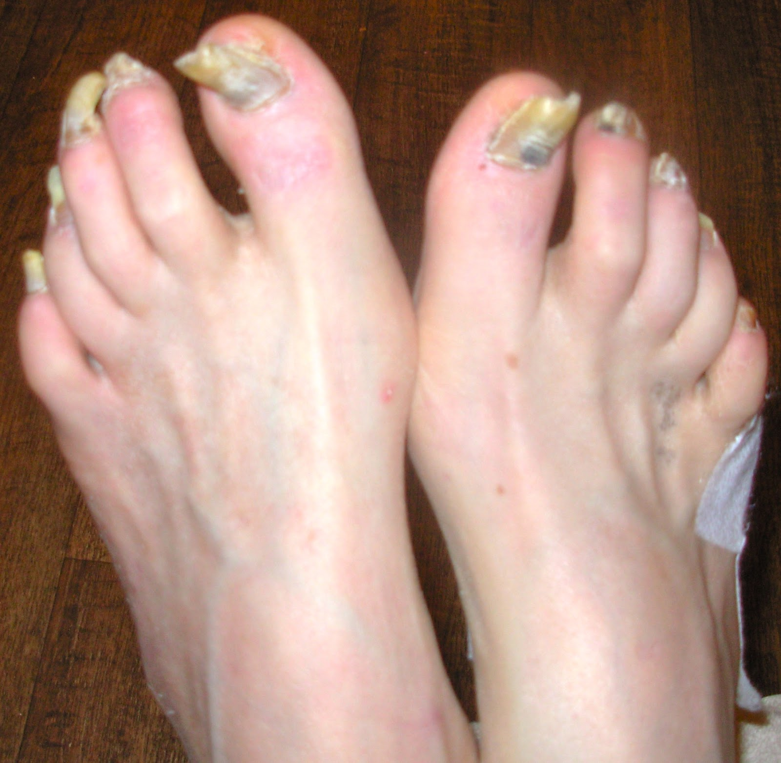 Diabetic and possible fungus. Claw nails. | Lucie\'s Foot Care