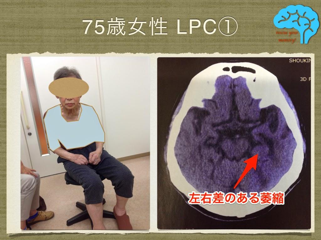 LPC 75歳女性 グルタチオン効果あり