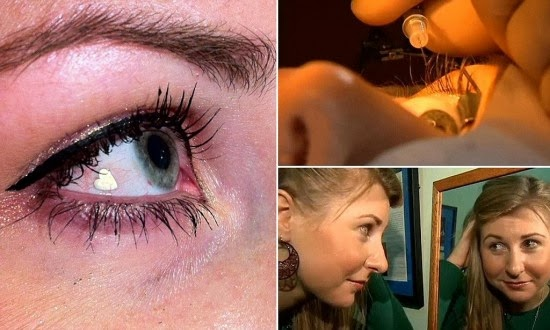Woman Gets Platinum Jewel Implanted in Her Eye to Make Herself Unique