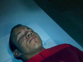 Homem ressuscita após levar vários tiros na cabeça