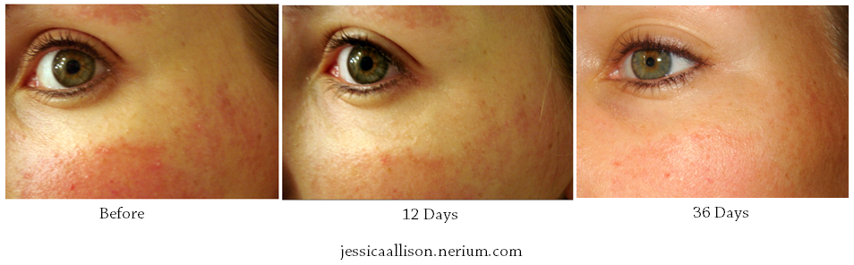 Nerium AD Before and After Pics