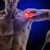 Como evitar a lesão no Manguito rotator