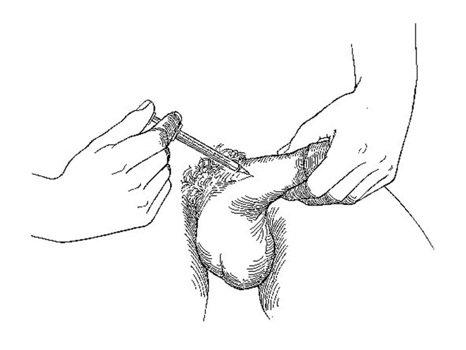 Penile Injection Reviews Experiences Anyone? Trimix,