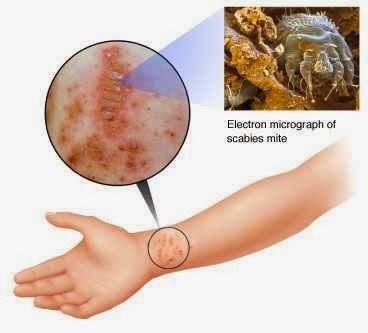 Penyebab dan Cara Mencegah Penyakit Gudik
