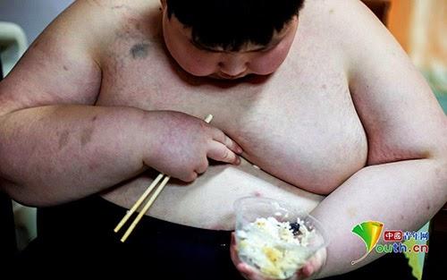 Cậu bé béo phì và nặng nhất Trung Quốc