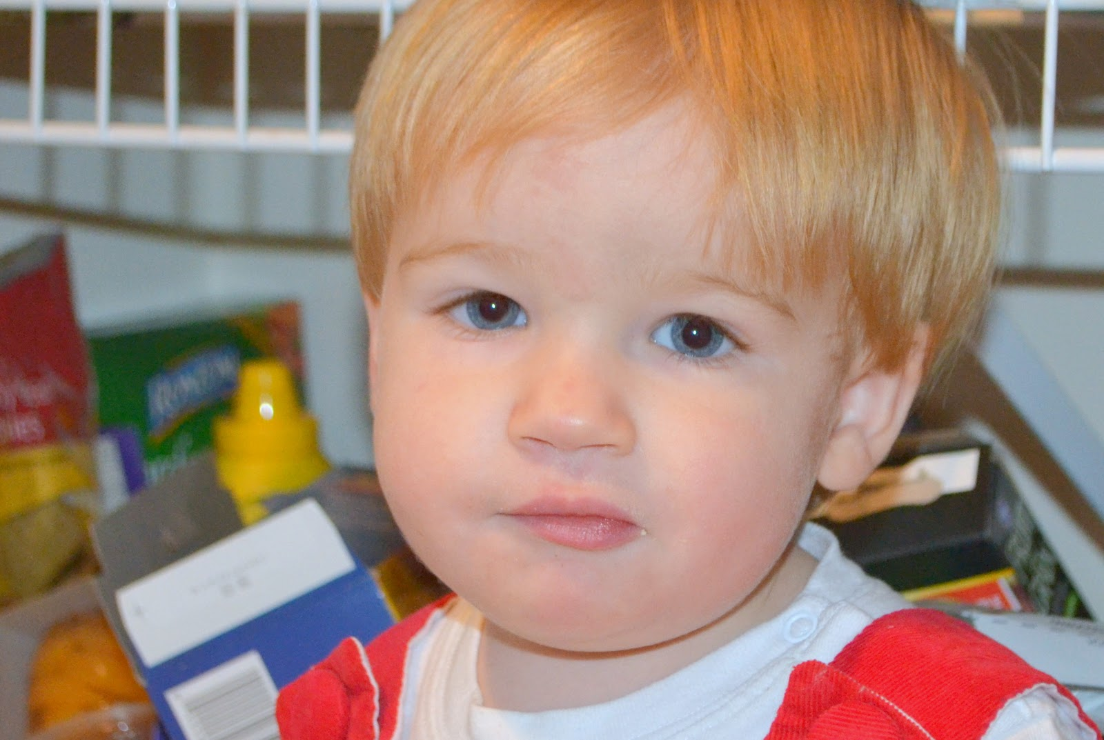 Klippel-Feil syndrome: signs, photo, treatment, prognosis 99