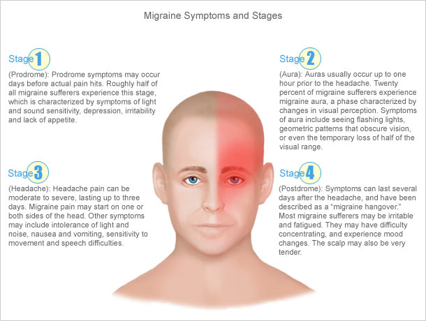 Migraine Symptoms and Stages