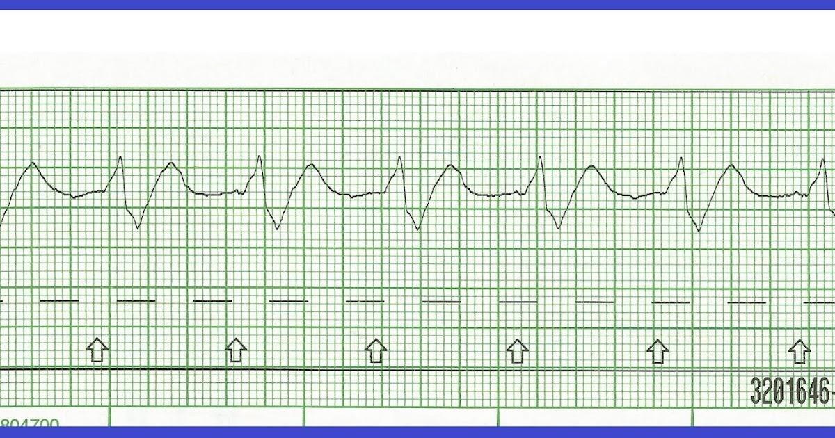 Float Nurse Code Blue Sudden Cardiac Arrest