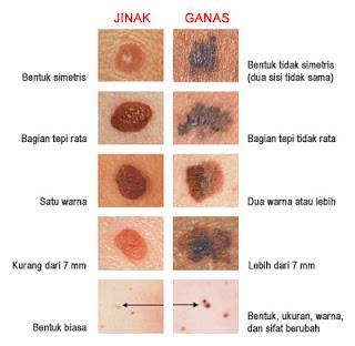 Obat Kanker Kulit Herbal