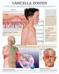 Obat Alami Penyakit Cacar Air