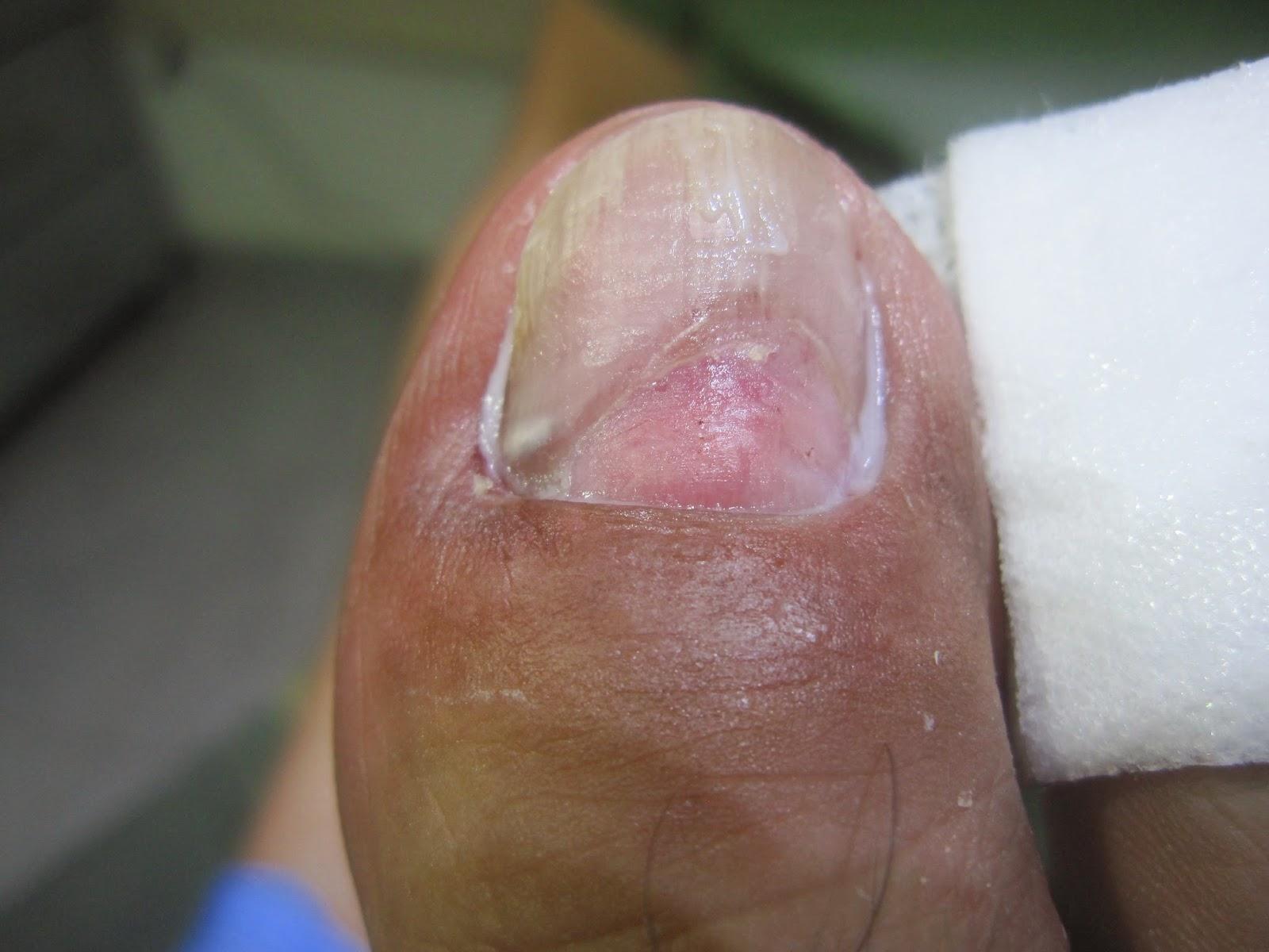 El hongo de las uñas como curar las medicinas