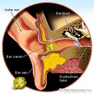telinga-ear-wax-serumen