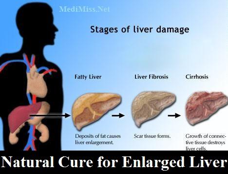 Enlarged Liver Natural Cure For Enlarged Liver Medimiss