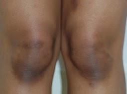 5 Bahan Alami Untuk Bersihkan Lutut Gelap dan Kasar