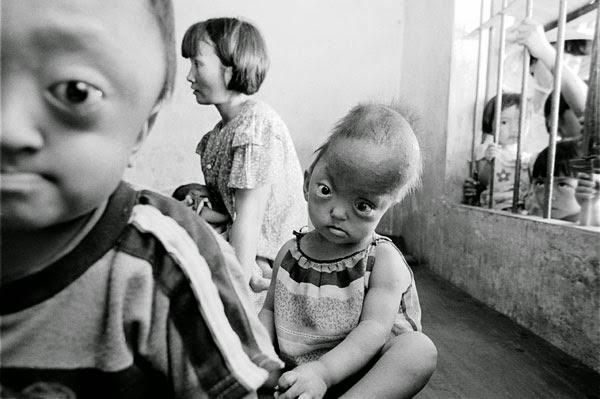 Enfant victime de l'agent orange children war vietnam orange art of sound