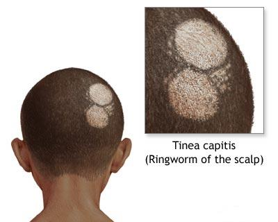 Health care facts ringworm definition symptoms causes home herbal what is ringworm ringworm definition ringworm is basically a form of a skin infection which is caused by a fungus that affects the skin nails ccuart Gallery