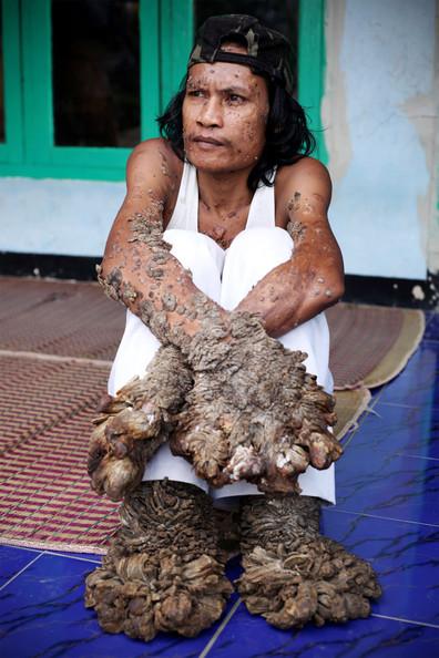 Epidermodysplasia Verruciformis- Ağaç Adam Hastalığı