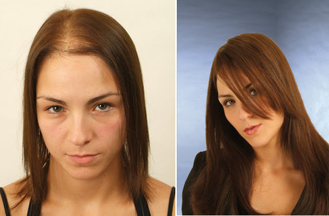 Before and After Laser hair Treatment