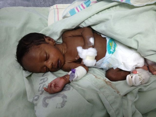 babies born at 33 weeks after steroid shots