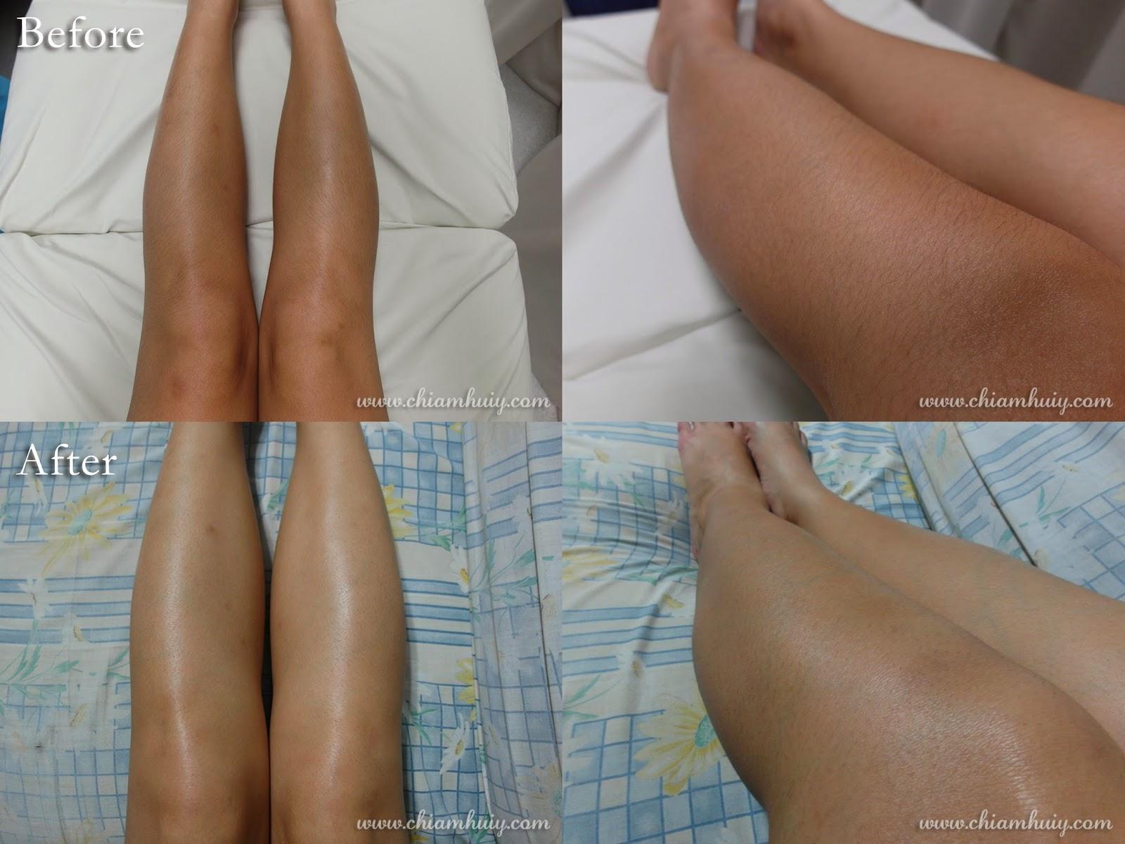 laser treatment for legs